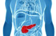 Detectar estos síntomas de cáncer de páncreas puede salvarte la vida
